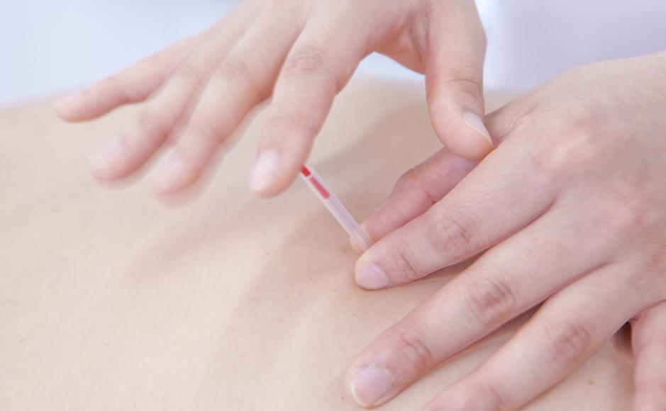 東洋医学的アプローチによる治療